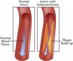 diagram-CIMT-artherosclerosis
