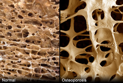 webmd_rm_photo_of_porous_bones